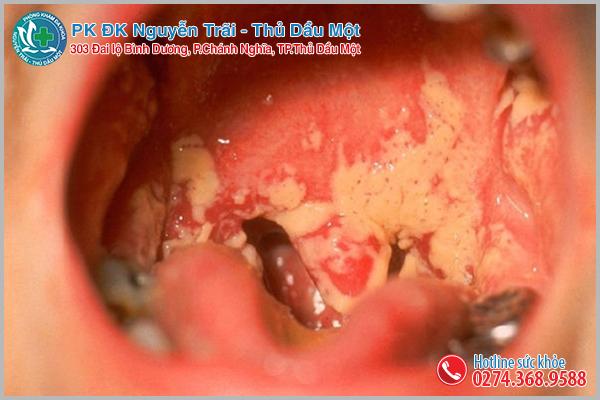 Triệu chứng và biểu hiện của bệnh lậu cần chú ý