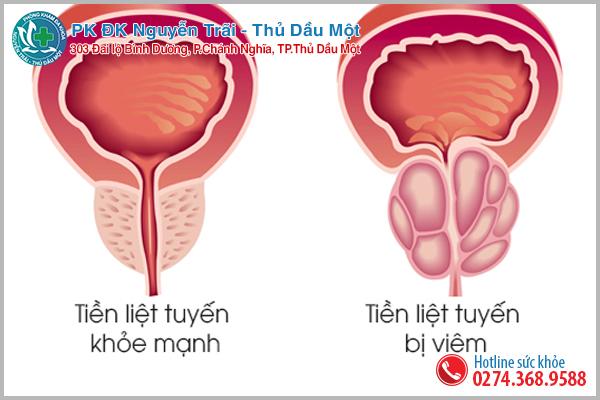 Viêm hoặc apxe tuyến tiền liệt