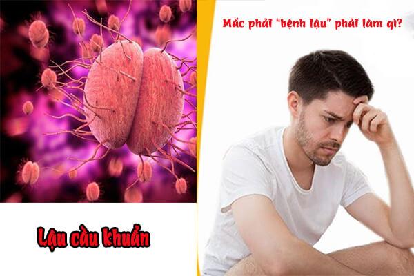 Tổng quan về bệnh lậu ở cả nam và nữ giới