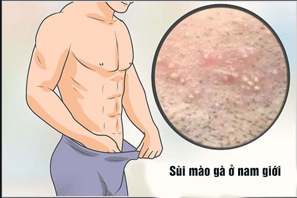 Sùi mào gà ở nam giới và cách điều trị hiệu quả